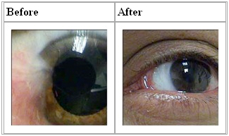 pterygium removal